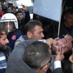 Polis gözaltına almak istediği kişinin ağzını yırttı