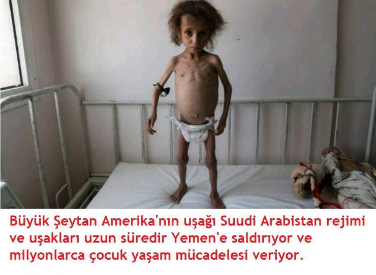 siyonist-suud-yemen